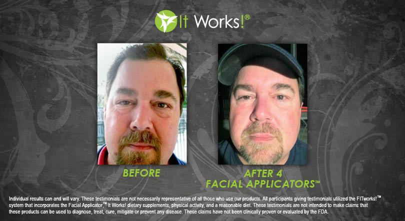 résultat avant apres 4 hydrating facial mask visage it works homme