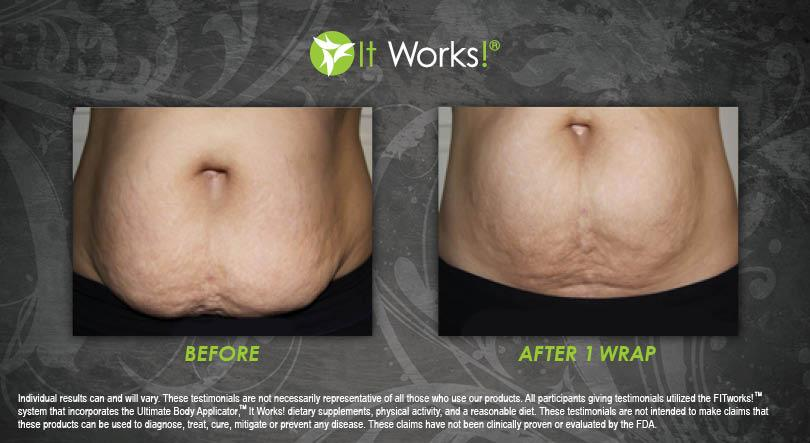 wrap it works grossesse ventre avis avant apres photo 24