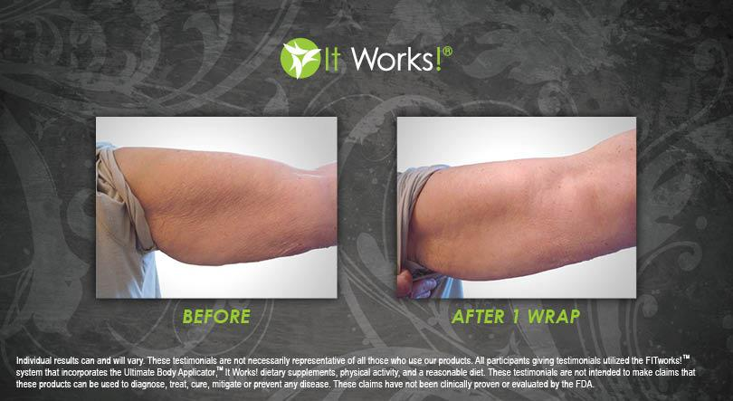 wrap it works bras avis avant apres photo 6
