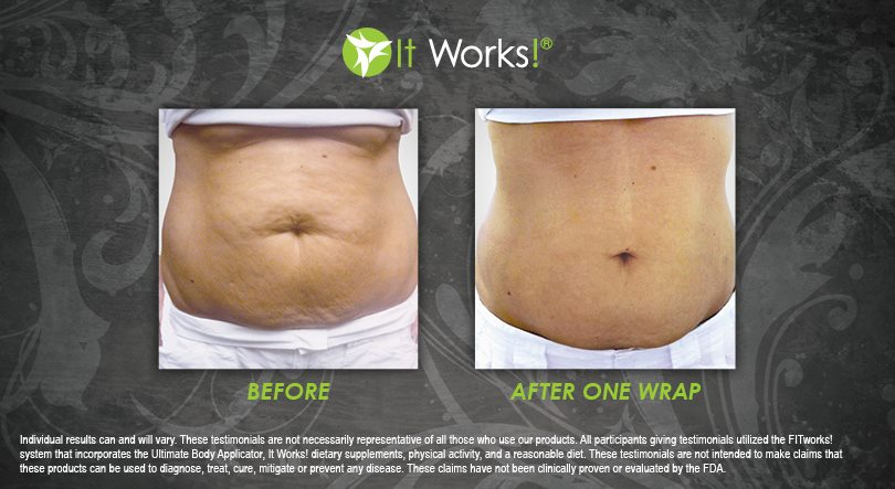 wrap it works ventre avis avant apres photo 9