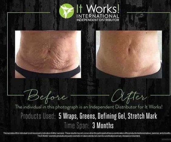 it works wrap greens defining gel stretch mark avis avant après