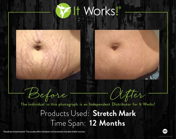 stretch mark it works avant apres ventre vergetures