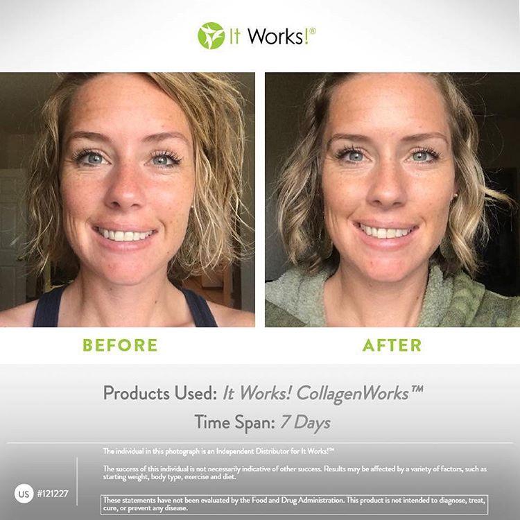 collagenworks résultats avant après visage it works