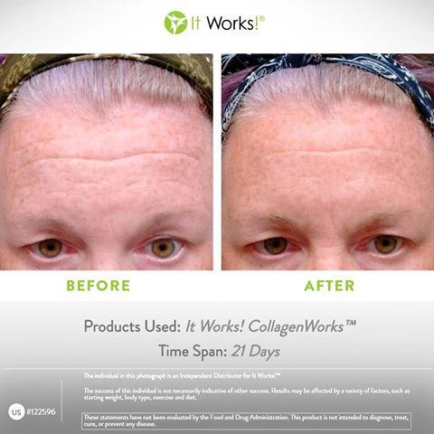 collagenworks résultats avant après front it works