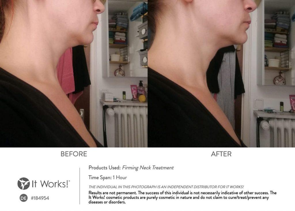 traitement-raffermissant-cou-avant-apres-it-works-06